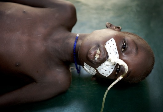 A young Nuer boy shot through the liver