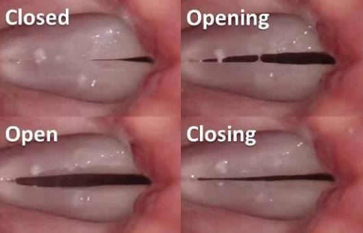 Vocal_Folds_Action